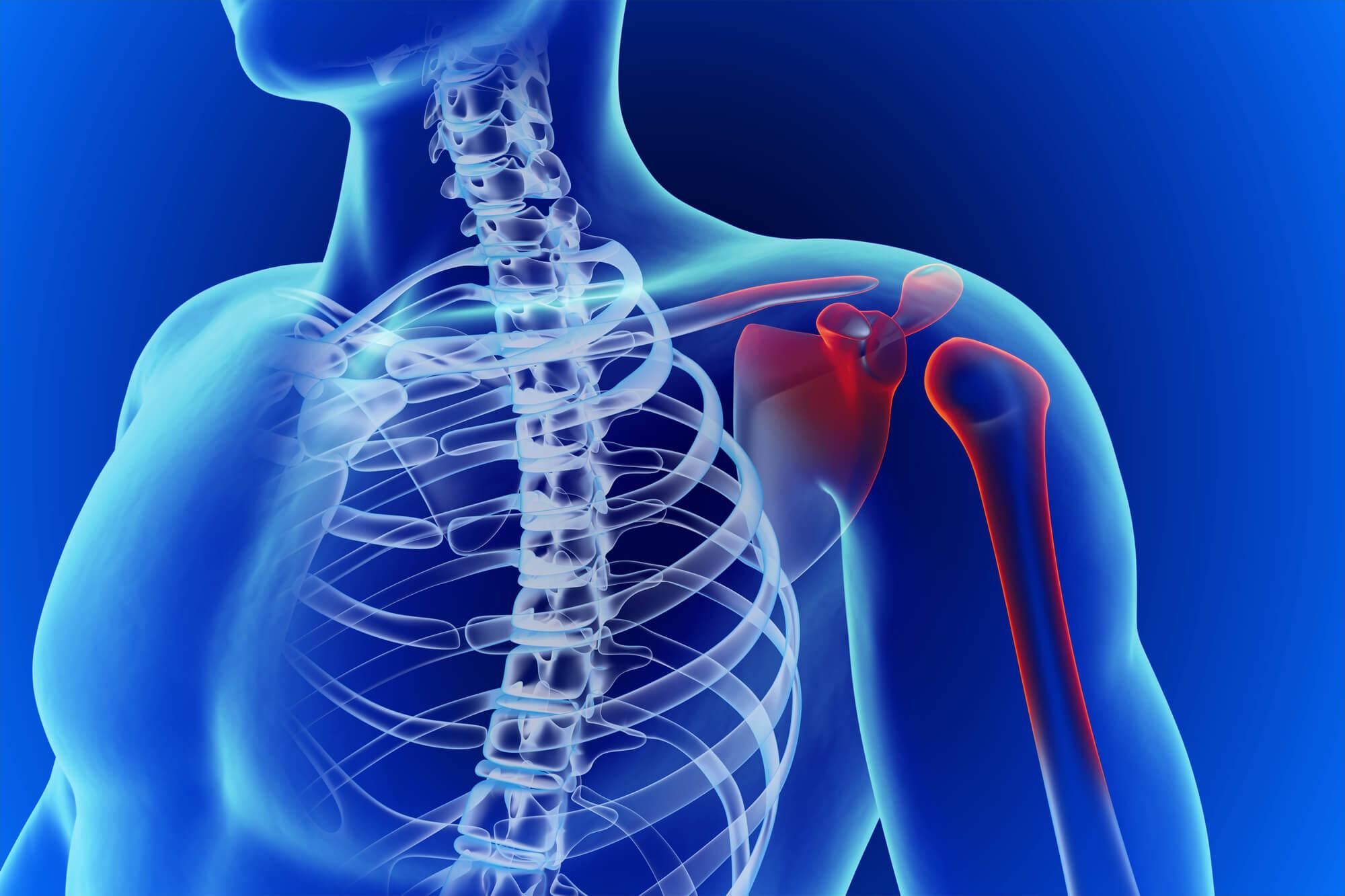 טיפול בכאבים בכתף